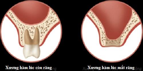 Tại sao phải cấy ghép xương trong implant 2