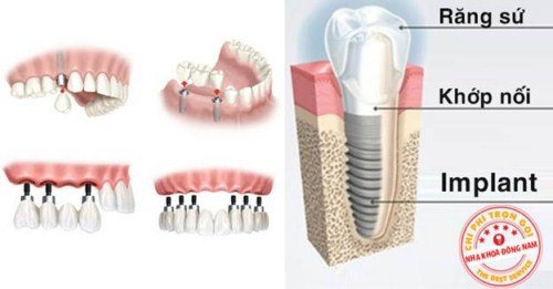 Tại sao phải cấy ghép xương trong implant 6