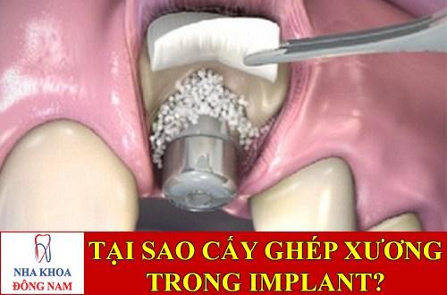 Tại sao phải cấy ghép xương trong implant