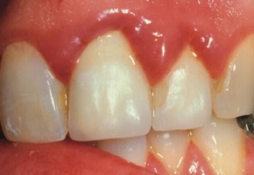 biểu hiện của viêm nướu răng
