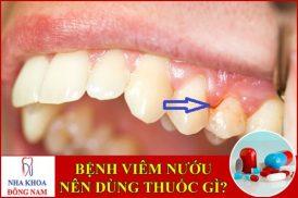 Bệnh viêm nướu răng uống thuốc gì