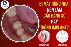 Bị Mất Răng Nhai Nên Làm Cầu Răng Sứ Hay Trồng Implant