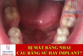 bị mất răng nhai nên làm cầu răng sứ hay trồng implant -1