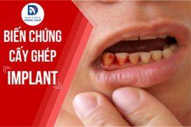 biến chứng khi Cấy Ghép Răng Implant