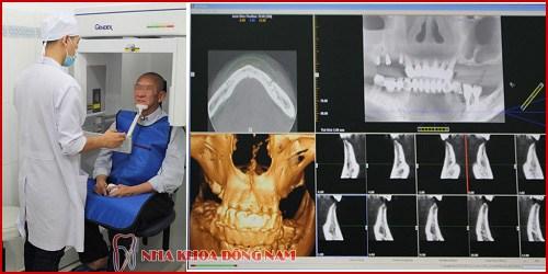 Biến chứng sau khi cấy ghép implant 10