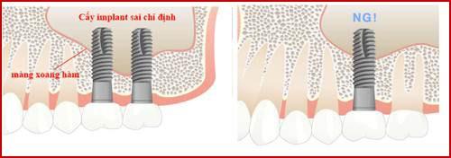 Biến chứng sau khi cấy ghép implant 7