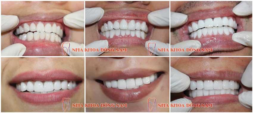 Trường hợp bọc răng sứ 2 hàm tại nha khoa Đông Nam