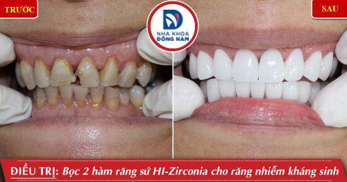 Bọc răng sứ cao cấp HI-Zirconia