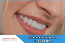 bọc răng sứ thẩm mỹ 2 hàm bao nhiêu tiền