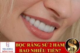 bọc răng sứ thẩm mỹ 2 hàm bao nhiêu tiền -1