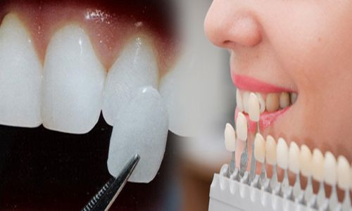 giá bọc răng sứ bao nhiêu