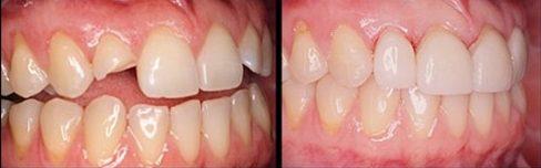 bọc răng sứ thấm mỹ có ảnh hưởng gì không