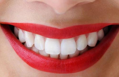 bọc răng sứ thẩm mỹ có an toàn không