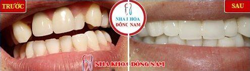 bọc sứ răng cửa bị lệch có cần phải lấy tủy không 1
