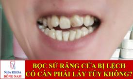 bọc sứ răng cửa bị lệch có cần phải lấy tủy không -1