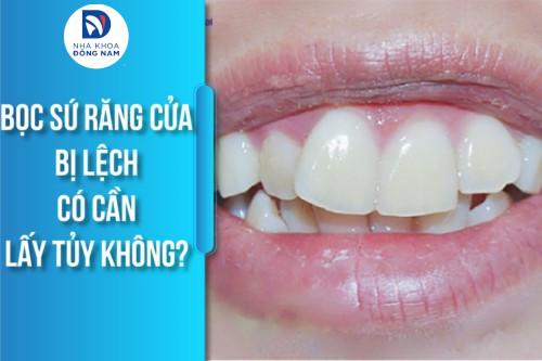 bọc sứ răng cửa bị lệch có cần phải lấy tủy không