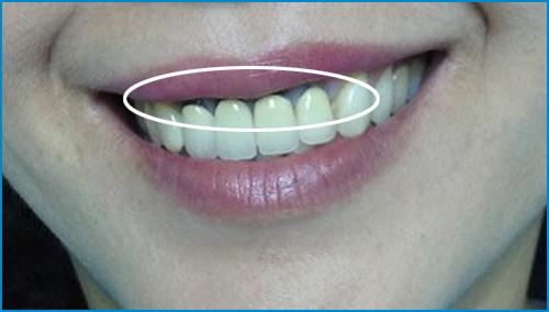 bọc sứ răng cửa bị lệch có cần phải lấy tủy không -2