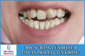Bọc răng sứ bị lệch có cần phải lấy tủy không