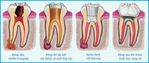 bọc sứ răng cửa bị lệch có cần phải lấy tủy không -3