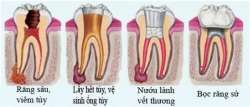 bọc sứ răng cửa bị lệch có cần phải lấy tủy không 5