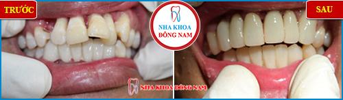 bọc sứ răng cửa bị lệch có cần phải lấy tủy không -5