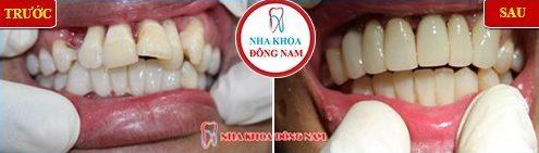 bọc sứ răng cửa bị lệch có cần phải lấy tủy không 6