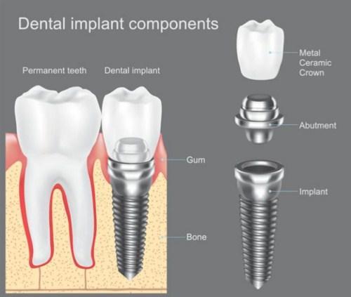 Cấy ghép implant có an toàn không 1