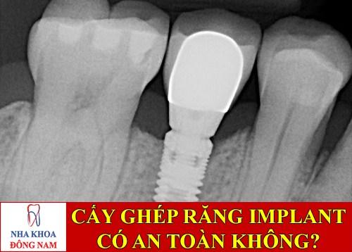 Cấy ghép implant có an toàn không