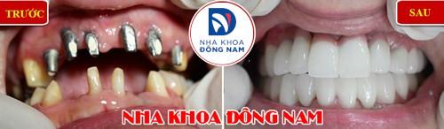 cấy ghép răng implant sử dụng bao lâu 10
