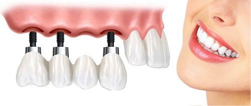 cấy ghép răng implant sử dụng bao lâu 3