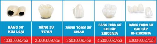 cấy ghép răng implant sử dụng bao lâu 4