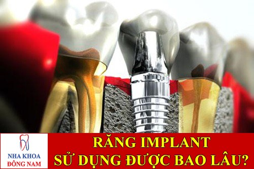 cấy ghép răng implant sử dụng bao lâu