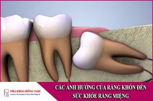 các ảnh hưởng của răng khôn đến sức khỏe răng miệng
