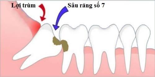 các ảnh hưởng của răng khôn đến sức khỏe răng miệng 1