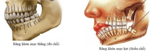 các ảnh hưởng của răng khôn đến sức khỏe răng miệng 3