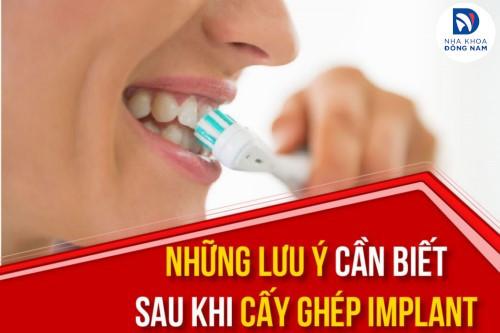 Cách Chăm Sóc Răng Implant Sau Khi Cấy Ghép