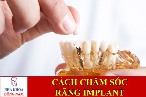 cách chăm sóc răng implant sau khi cấy ghép -1