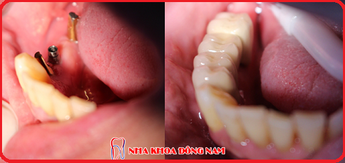 cách điều trị 2 răng cửa bị hư và 2 răng hàm bị mất -3