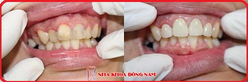 cách điều trị 2 răng cửa bị hư và 2 răng hàm bị mất -4