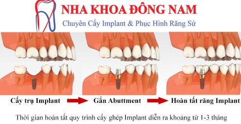 cách điều trị 2 răng cửa bị hư và 2 răng hàm bị mất -6