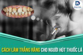 Cách làm trắng răng cho người hút thuốc lá