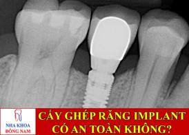 cấy ghép răng implant có an toàn không -1