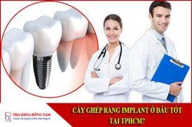 cấy ghép răng implant ở đâu tốt tại tphcm