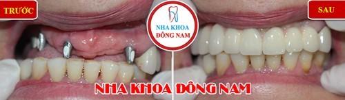 cấy ghép răng implant ở đâu tốt tại tphcm 2