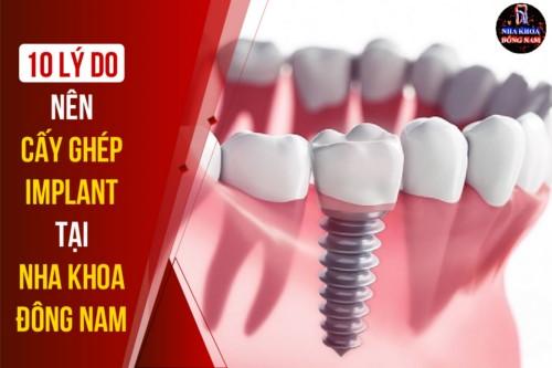 cấy ghép răng implant ở đâu tốt tại tphcm 10