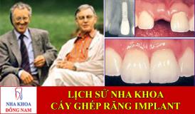 cấy ghép răng implant trong nha khoa -1
