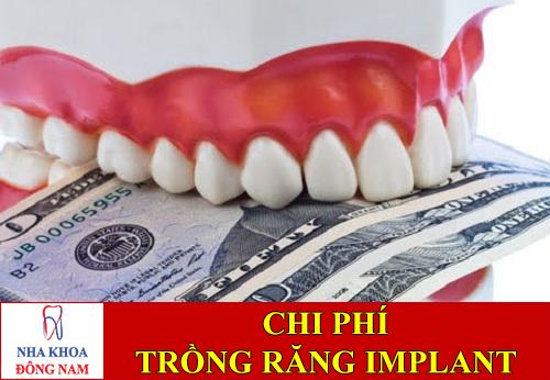 chi phí trồng răng implant bao nhiêu -1