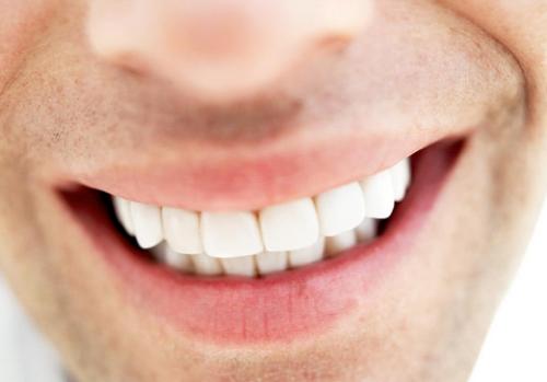 chi phí trồng răng implant bao nhiêu -4