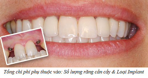 chi phí trồng răng implant bao nhiêu -6