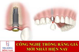 công nghệ trồng răng giả mới nhất hiện nay -1